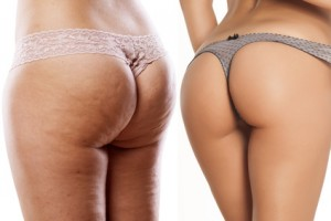 body care - female buttocks with and without cellulite